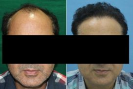 hair transplant in raipur chhattisgarh 3