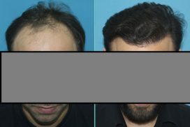 hair transplant in raipur chhattisgarh 2