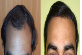 hair transplant in raipur chhattisgarh 7