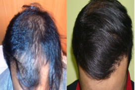 hair transplant in raipur chhattisgarh 8