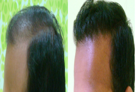 hair transplant in raipur chhattisgarh 6