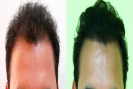 best hair transplant in raipur chhattisgarh