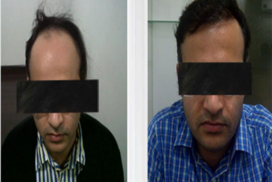 hair transplant in raipur chhattisgarh 5
