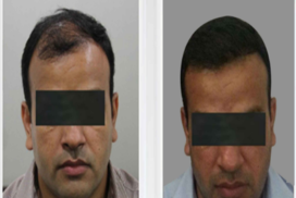 hair transplant in raipur chhattisgarh 9