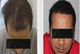 hair transplant in raipur chhattisgarh 4